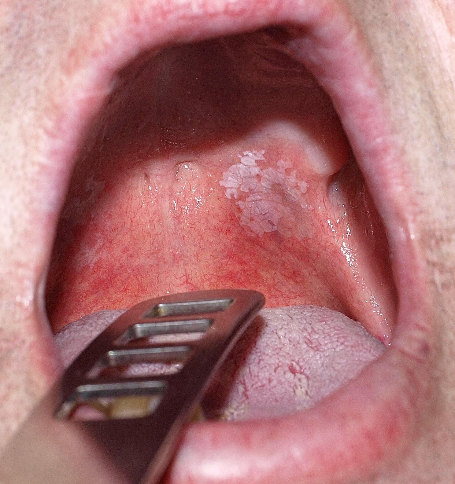 papilloma a szájban, ahol megszűnik