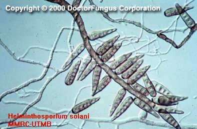 helminthosporium spórák)