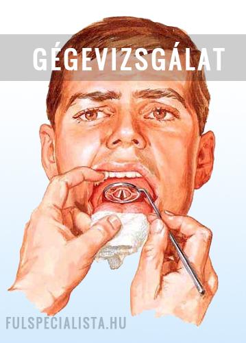 papillomavírus gége tünetei