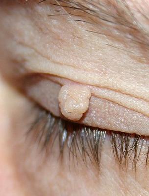 Aggódnom kell egy papillóma miatt? - Bőrgyógyászat - 2020