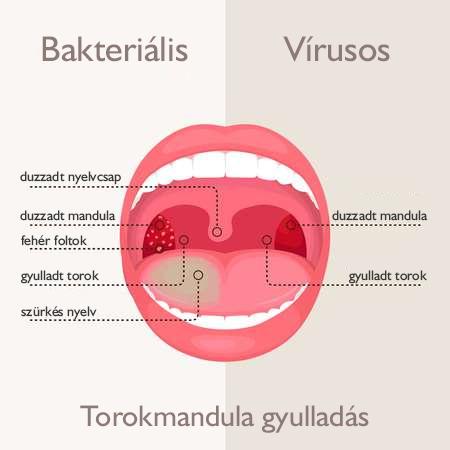papillomavírusos ember torokkezelése)