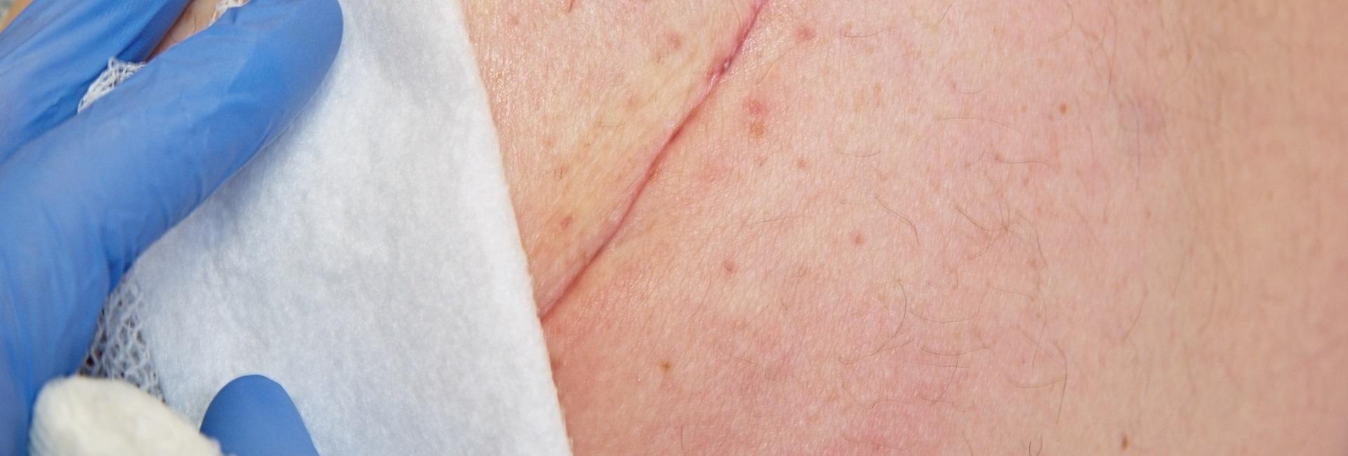szemölcs vakcina cukkini toxin