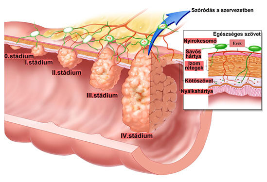 rák a hasi nyirokcsomók tüneteiben