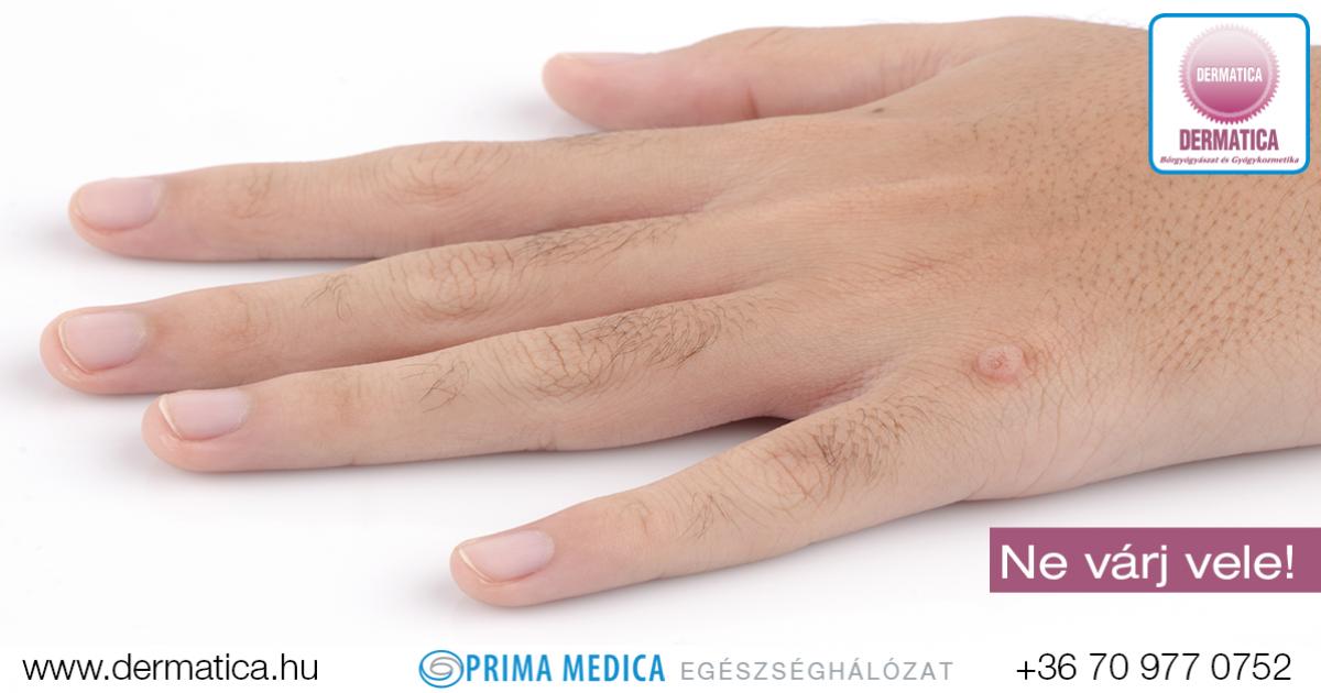 az ujjak közötti kukorica fáj a kezelésnek papilloma vírus oms