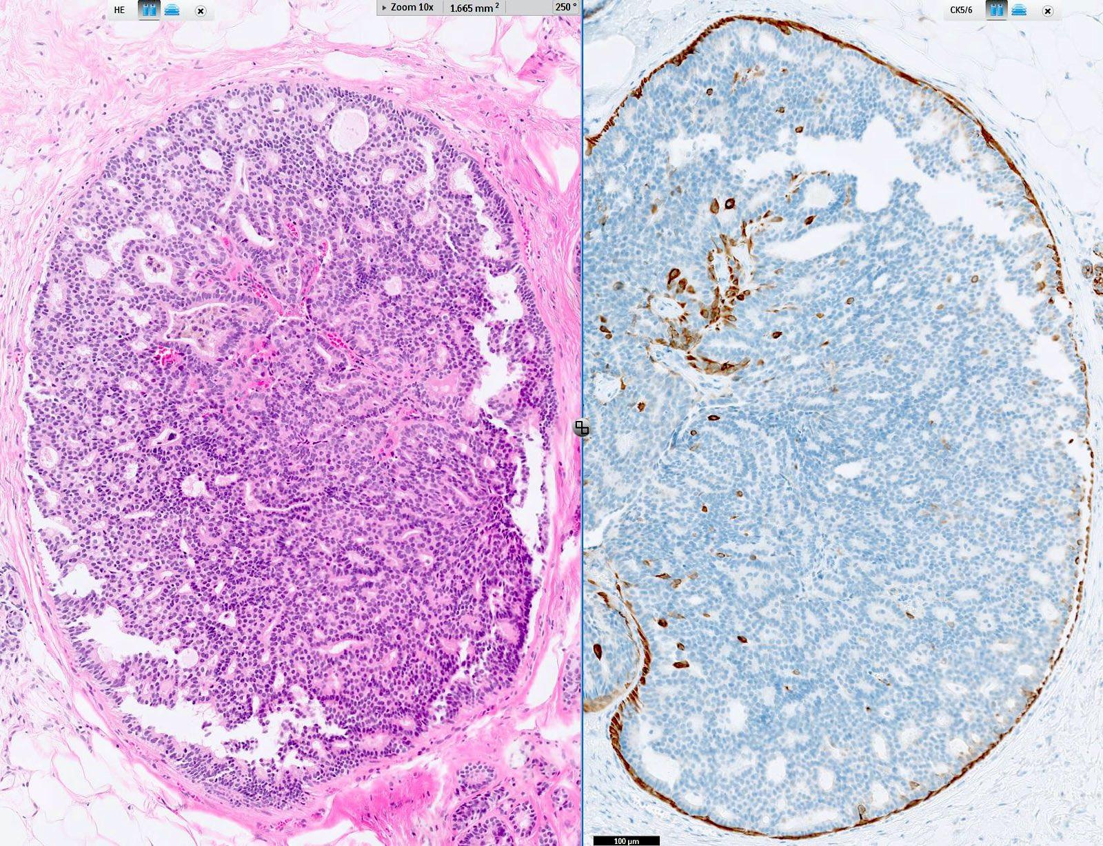 atipikus ductalis hyperplasia és papilloma mi az a galandféreg?