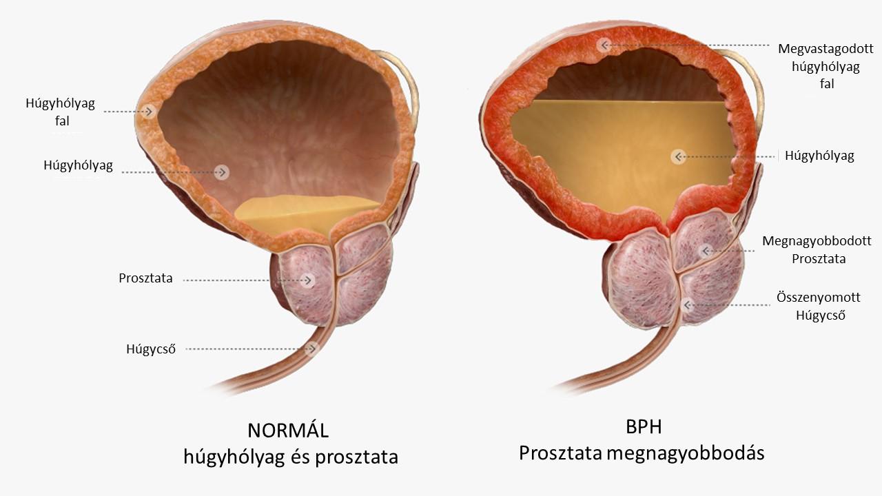Prosztatarák szűrés – PCA3 teszt