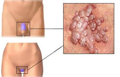 a genitális szemölcsök kezelése a húgycsőben férfiaknál