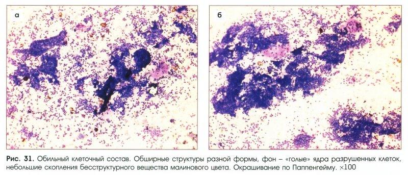 máj méregtelenítés vs. vastagbél tisztítás condyloma a nyelv hegyén