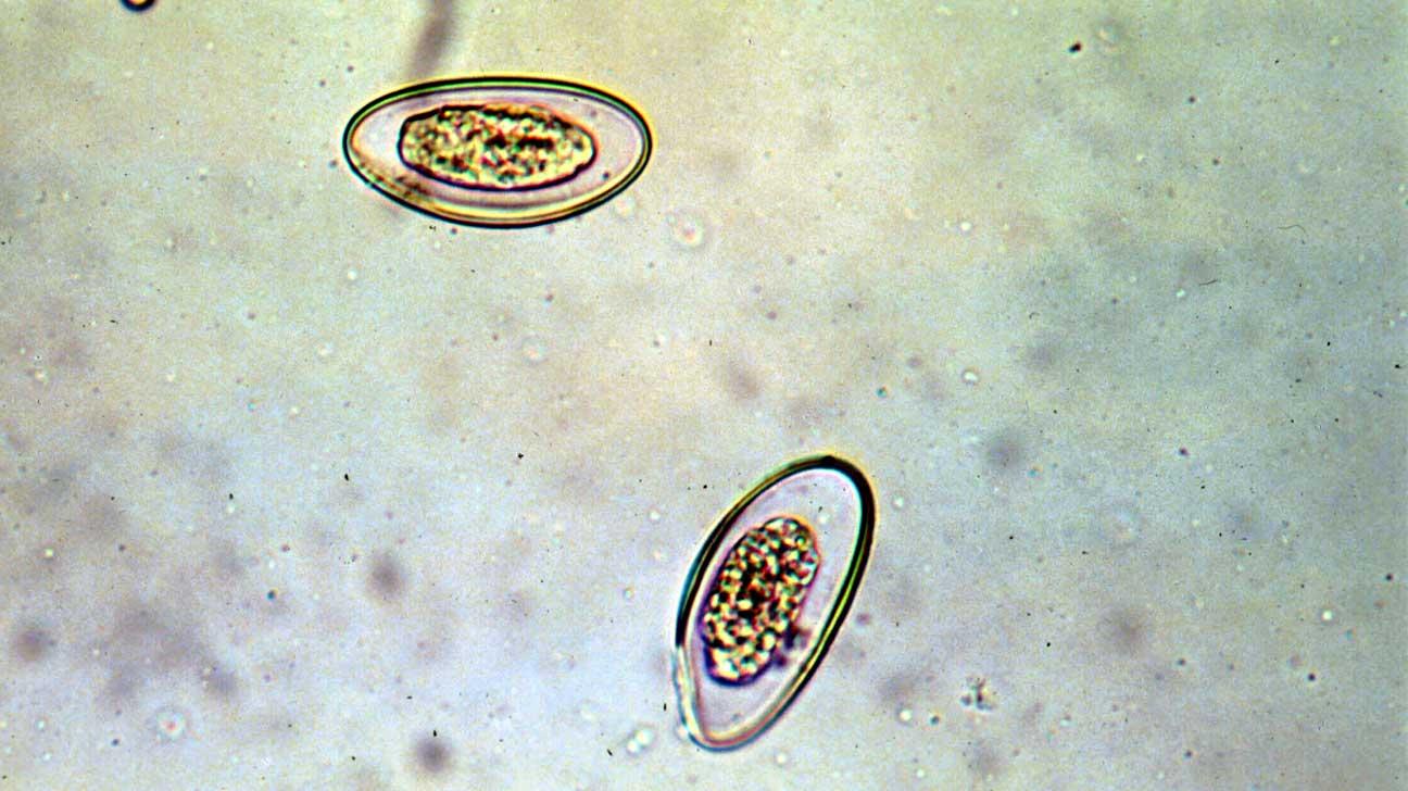 pinworms, hogy e)