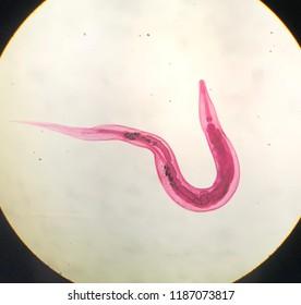 az enterobius vermicularis életciklusa diagrammal)