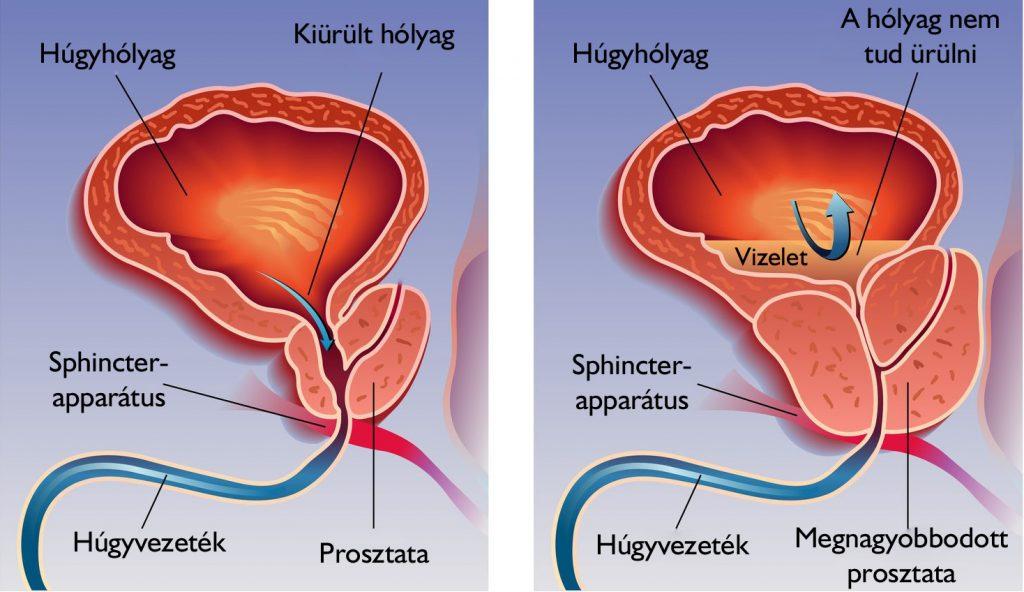 húgyhólyag papilloma a férfiak kezelési tüneteiben
