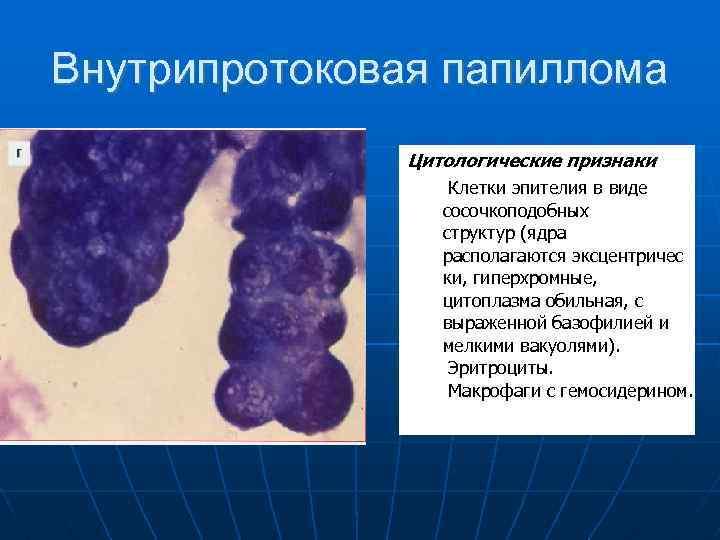 milyen tablettákat ihat a parazitáktól helmintás védekező molekulák