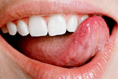 papilloma a nyelv oldalán szerv papilloma