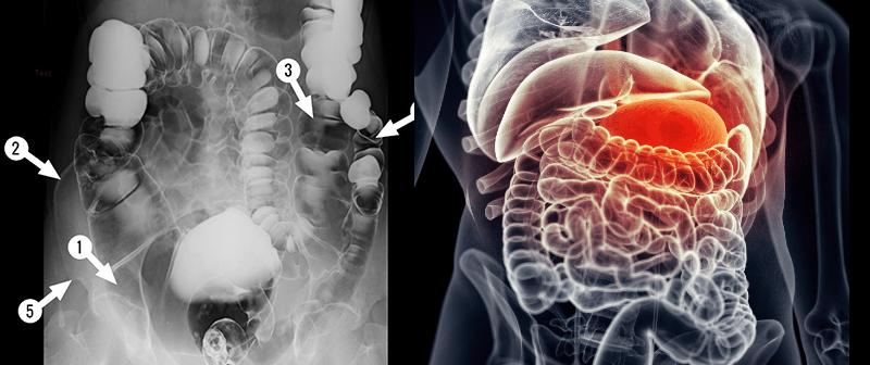 felnőttek parazitáinak kezelésére szolgáló gyógyszerek negatív hpv és dysplasia