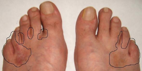 Viszket, hámlik? 5 tipp lábgomba ellen! - Springday Medical