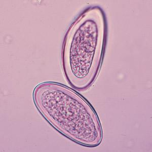 enterobius vermicularis cdc dpdx)
