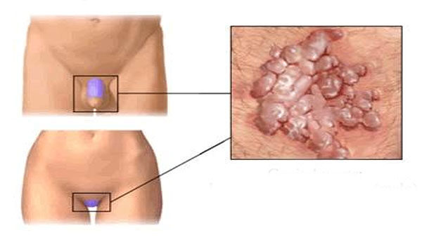 hogyan lehet eltávolítani a genitális papillómákat neuroendokrin rákos vizsgálatok