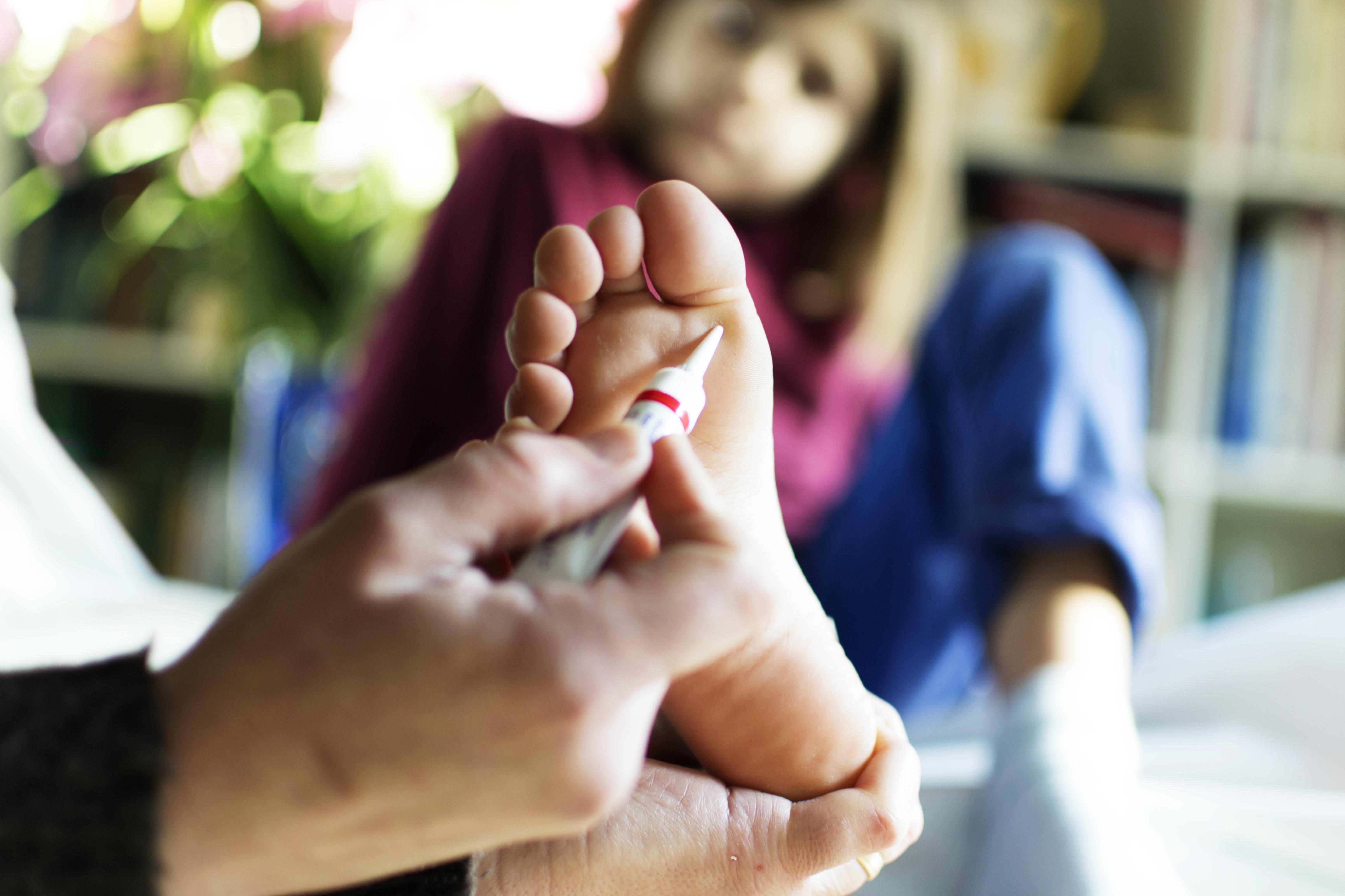 szemölcsök orvosi kezelése