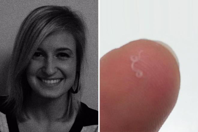 hatékony gyógyszer a kerek háború ellen paraziták pinworms képeket