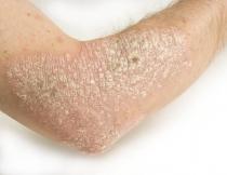 gyomor papillomatosis tünetek kezelése)