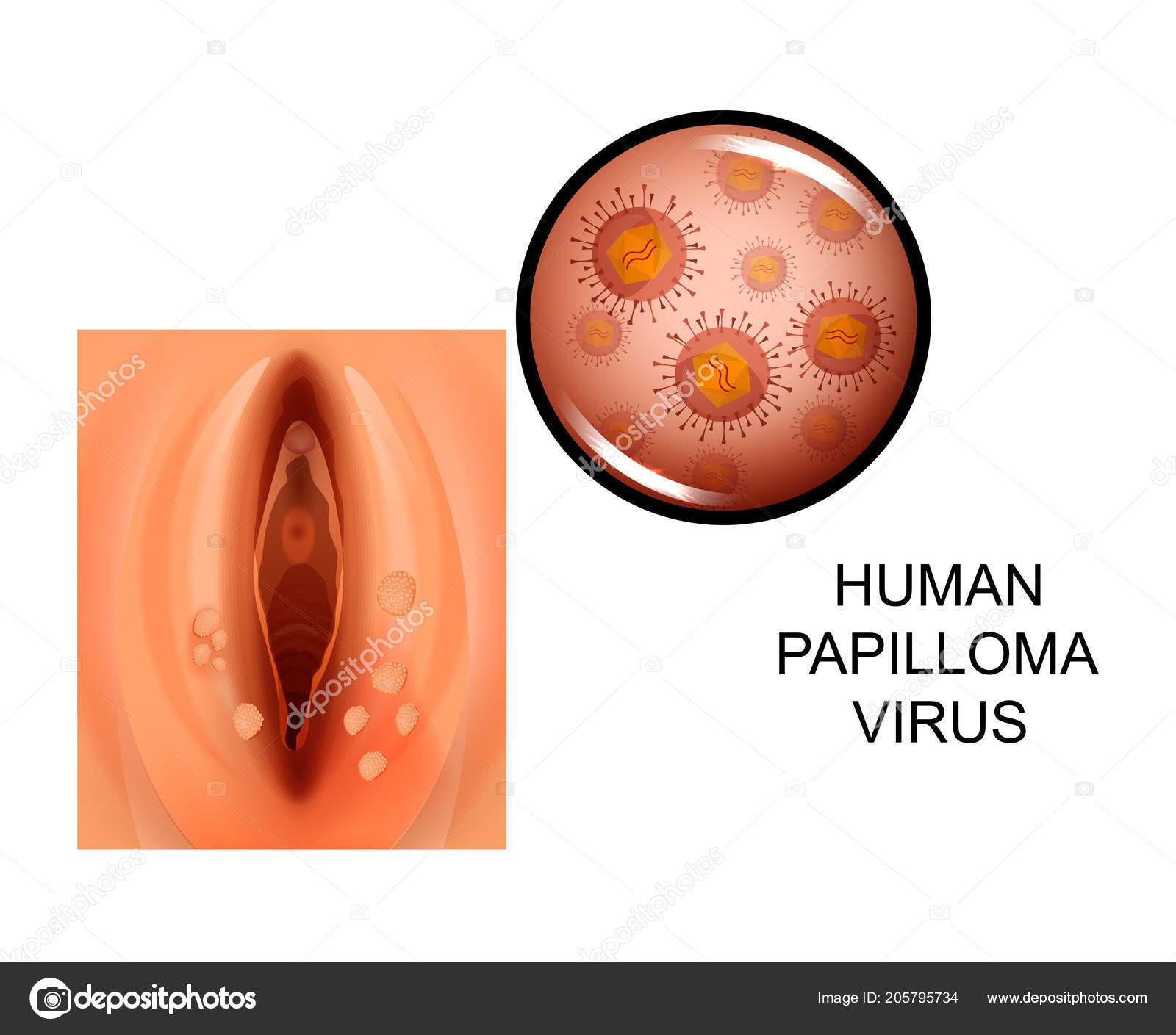 papilloma vírus a