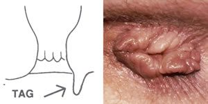 papilloma vírus és végbélnyílás