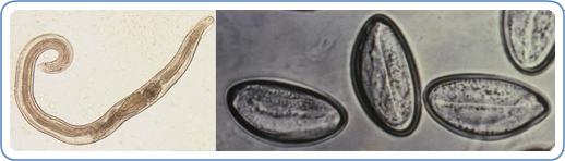 ami enterobiosis vagy pinworm)