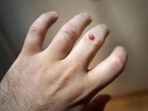 szemölcsöket okozhatnak a kezeken