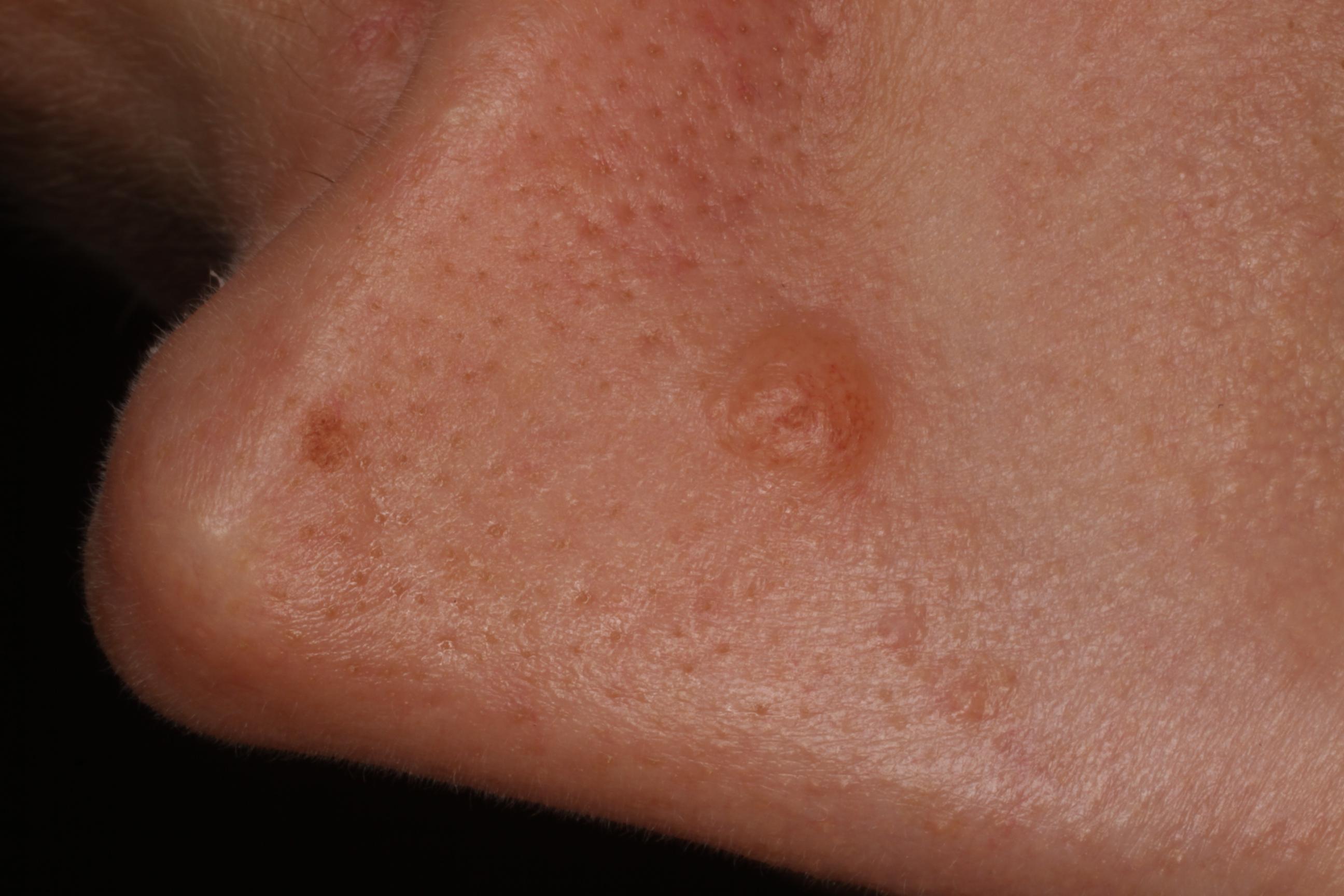 szemölcsök a bőr kezelésén)
