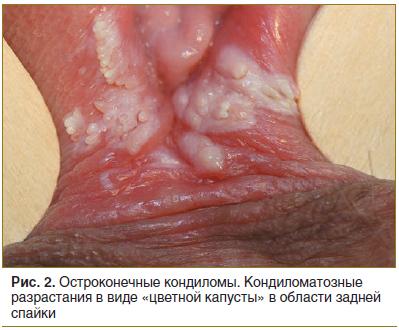condyloma a bőr kezelésénél