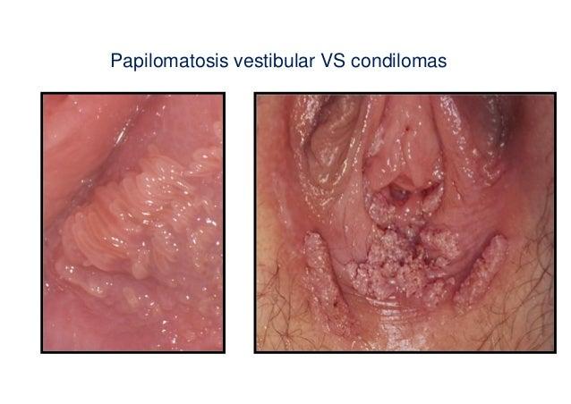 A méhnyak eróziója - okai, tünetei és kezelése Leucorrhoea condylomákkal