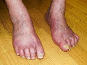 hogyan kell kezelni a lábujjak közötti lábfekélyeket)