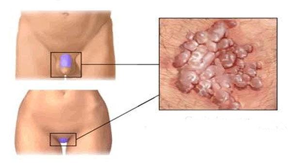 Rektális condyloma tünetei és kezelése - Carcinoma