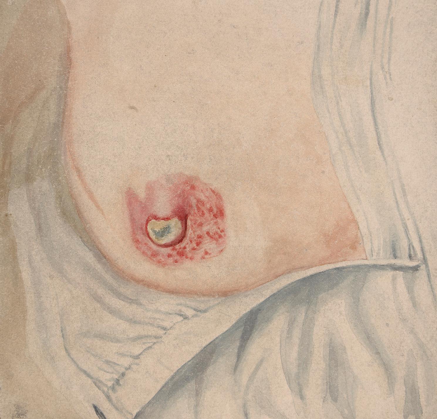 női mellbimbó rák)