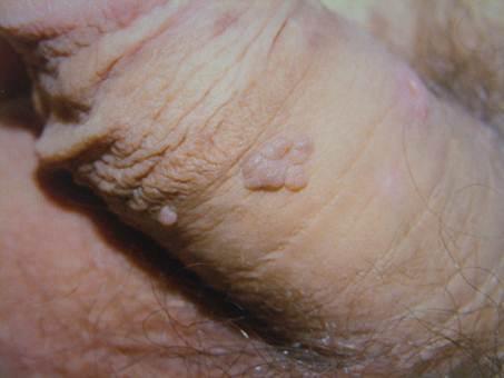 genitális szemölcs eltávolítási technika