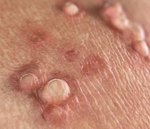 hpv vírus behandeln