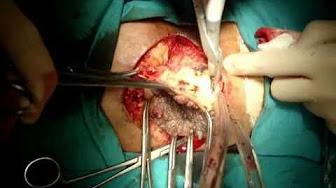 a condyloma bushke levenshtein kezelése