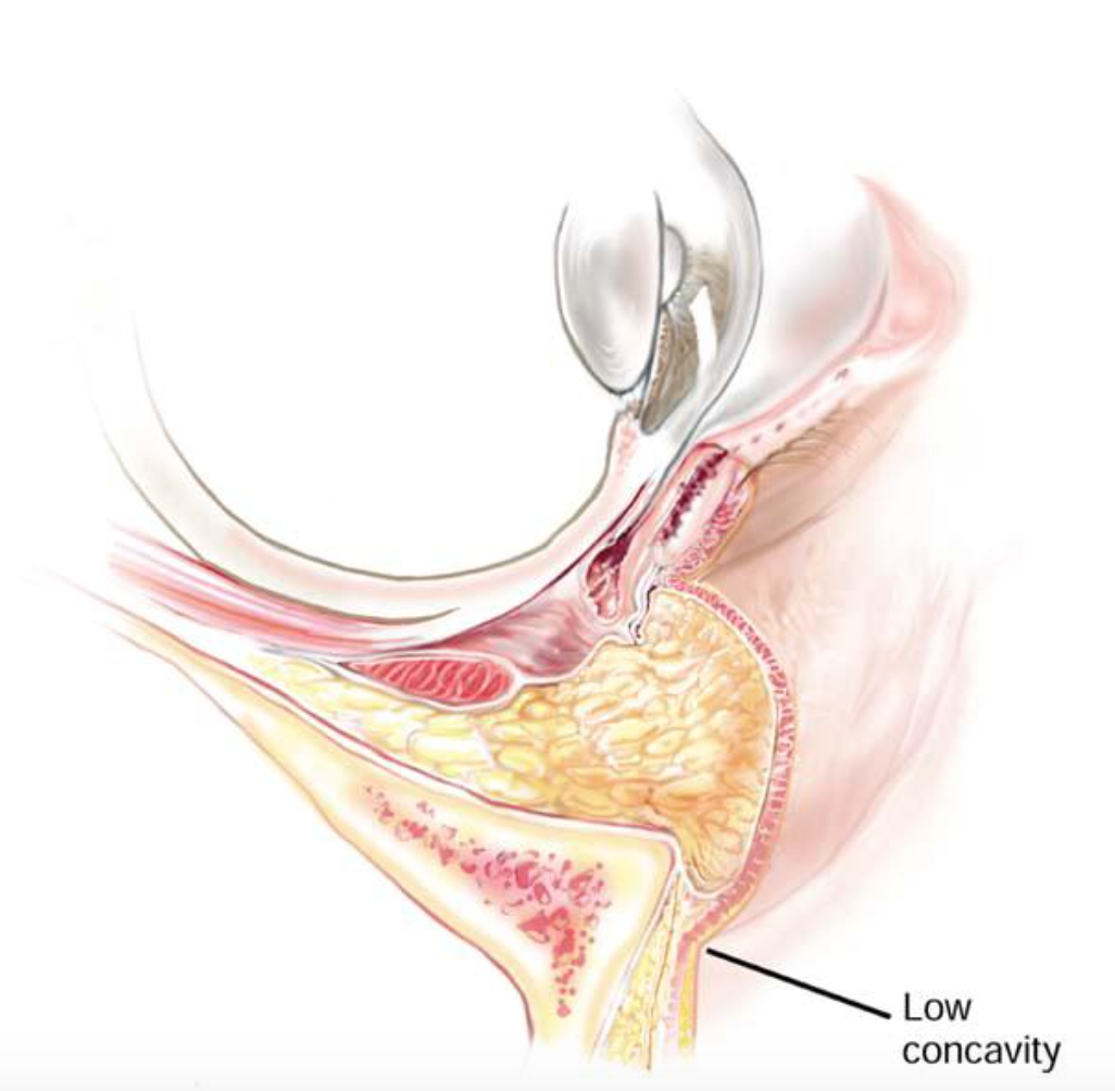 Papillomák a mell alatt: fotó, okok, eltávolítás - Carcinoma