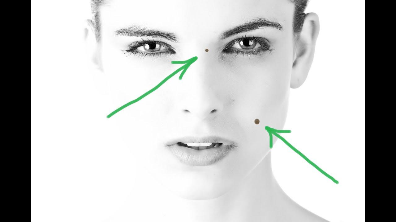 A papillomák a torokban veszélyesek? - Bőrgyulladás October