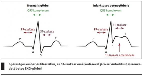 a szívroham jelei)