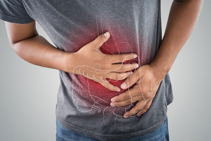 A vastagbélrák tünetei és okai)
