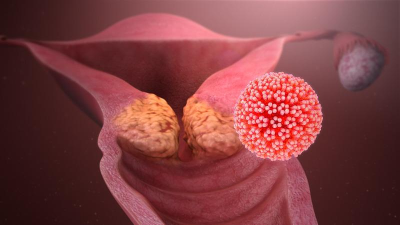 papilloma vírus, hogy)