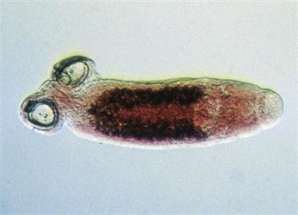 phylum platyhelminthes trematode osztály)