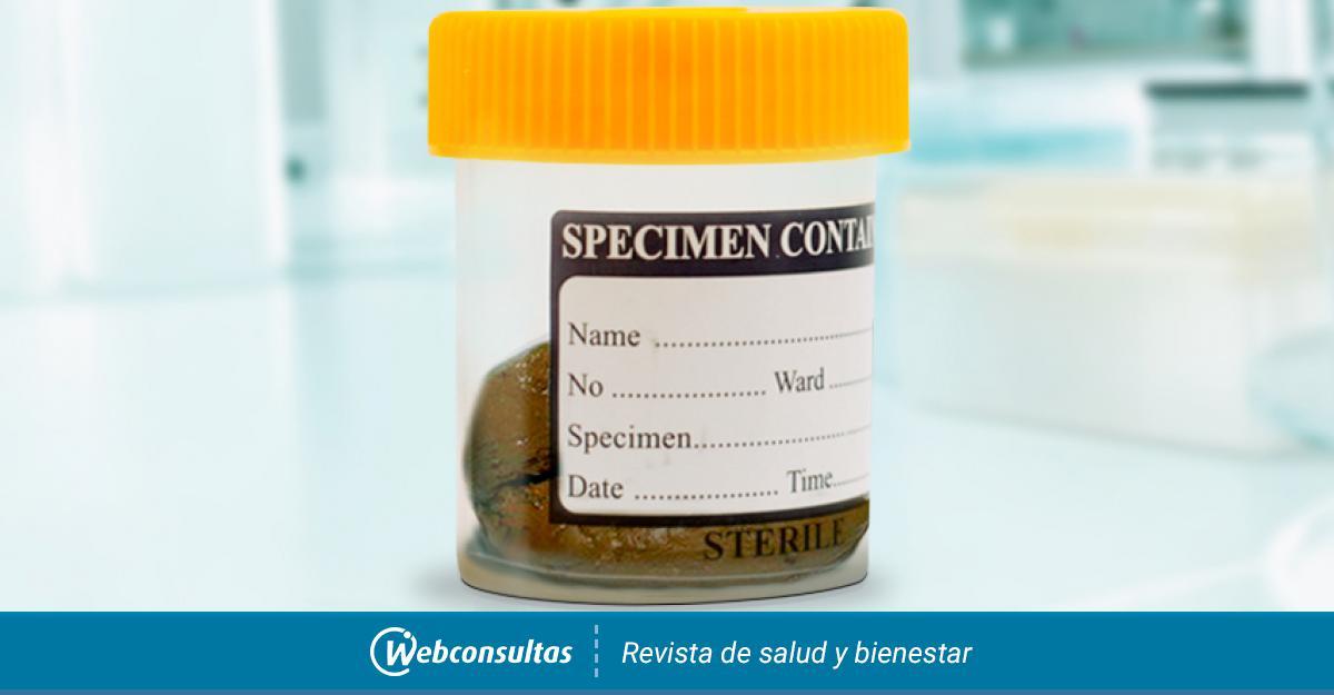 adag a giardiasis nifuratelre)
