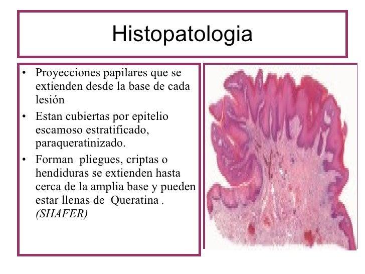 papilloma orális patológia)