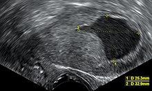 a helminthiasis kezelése meddig tart a papilloma vírus beavatkozása