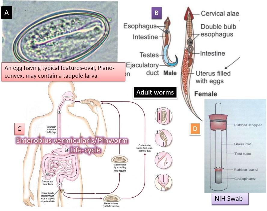 Enterobius vermicularis (Gombféreg) | Körinfo