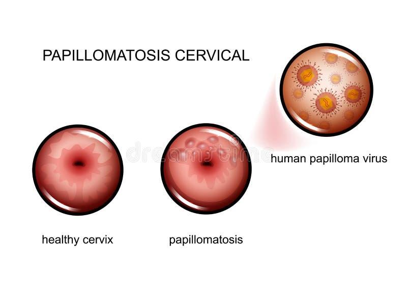 papillomatosis vírus