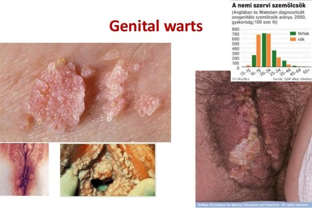 hpv anogenitális szemölcsök penyakit hpv pada lelaki
