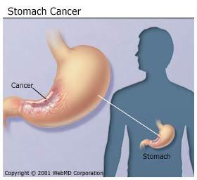 gyomor metasztatikus rák